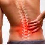 Migliore crema per il mal di schiena - Classifica e consigli sull'uso